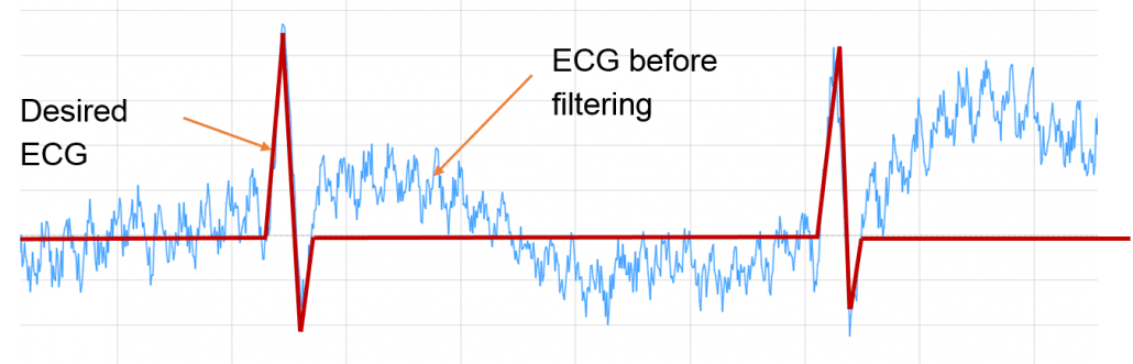 ECG before wanted ECG digital signal processing, ECG_reference_IPblocks baseline wandering noise reduction 50hz cancellation Savitzky-Golay Filter biomedical signal analysis, ECG signal procssing, ECG DSP